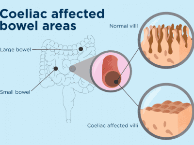 The Rise Of Coeliac Disease and the Need For Increased Knowledge on the Condition
